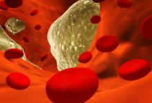 народная медецина и холестерин